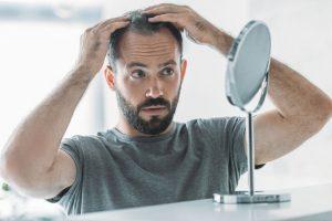 Príčiny vypadávania vlasov u mužov